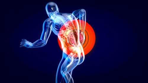 כאב פיברומיאלגיה